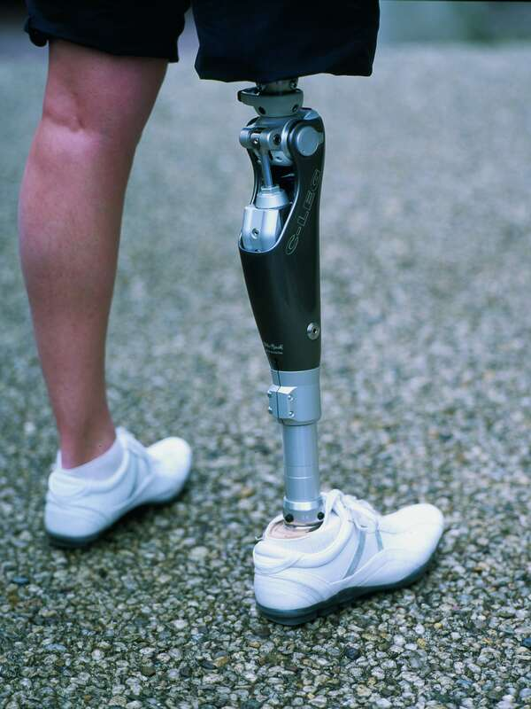 "c-leg prothesis • electrically powered prothesis • hybrid prosthesis • activity-specific prothesis for example, ottobock offers the ottobock ""c-leg"" and."